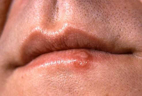 Does Having Blister In My Lips Means I Have Herpes? 3