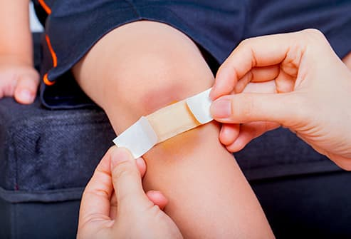 Child's bruised knee with bandage