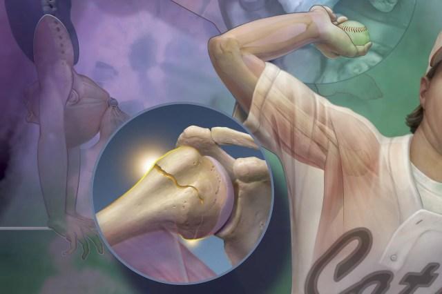 photo of cracked arm bone