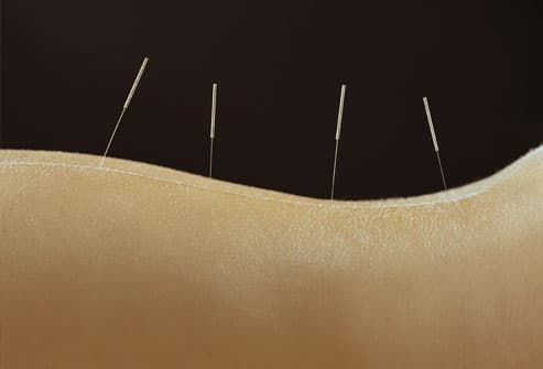 Woman With Acupuncture Needles
