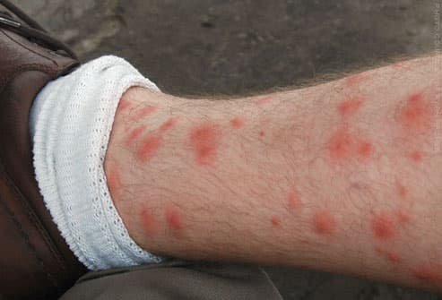 bug bites pictures to