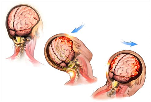 Brain Injury Pictures Concussion Causes XRays and