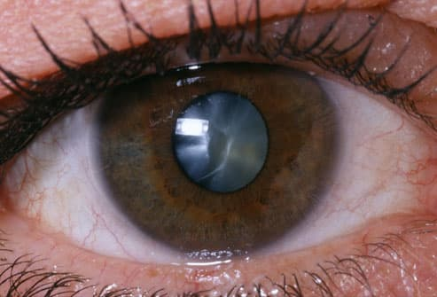 Why Are My Eyes Sensitive To Light After Cataract Surgery