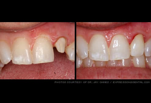 Tooth prepared for dental crown