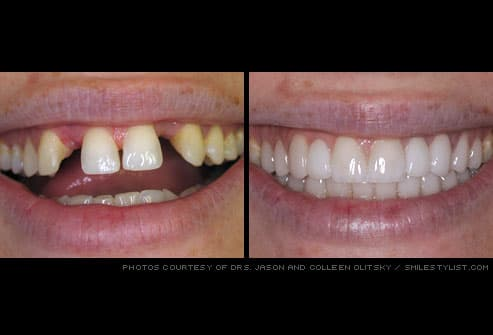 missing teeth restored with dental bridge