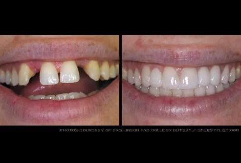 missing teeth restored with dental bridge