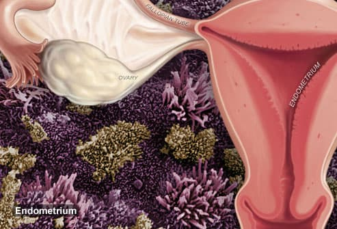 Illustration Of Endometriosis