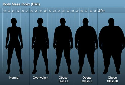 BMI for Bariatric Surgery