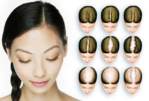 Women's Hair Loss Pictures Causes Treatments And More