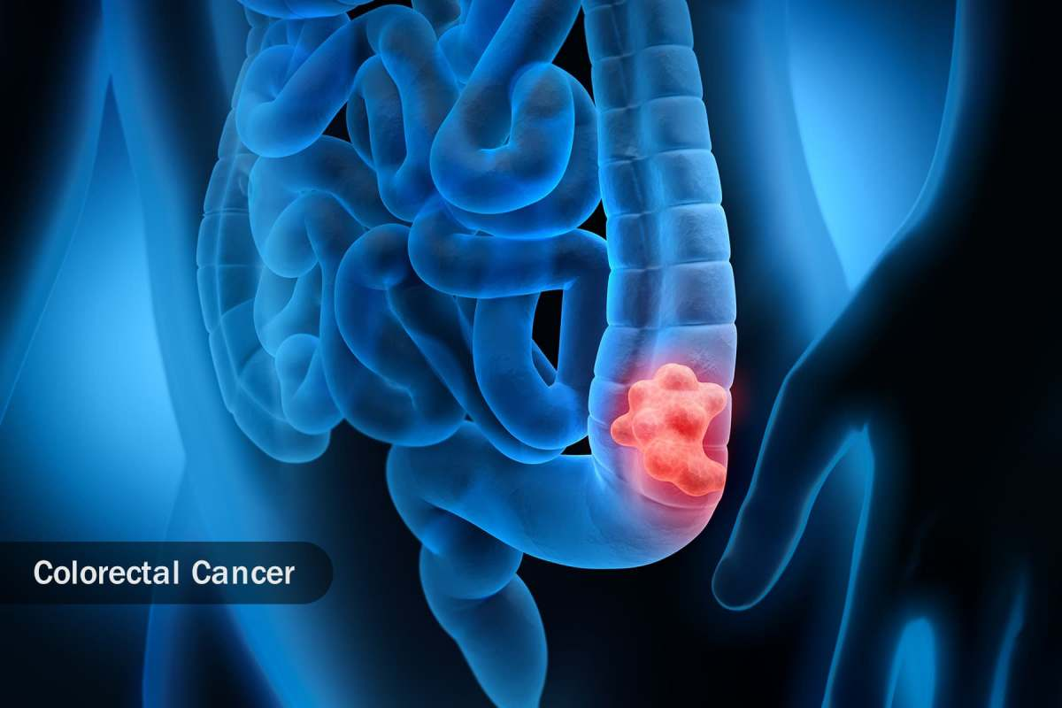 photo of colorectal cancer