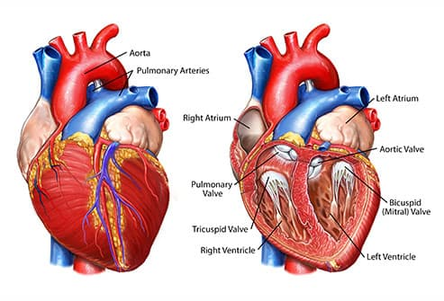 pictures how heart disease
