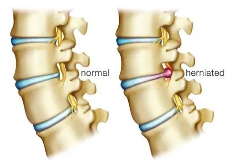 illustration of herniated disc