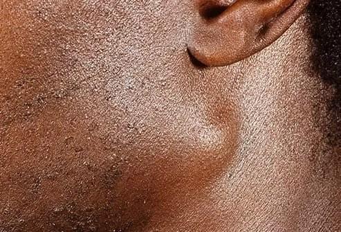 swollen lymph glands
