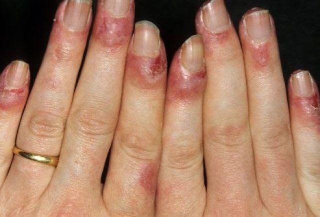 Acute Lupus On Fingernails