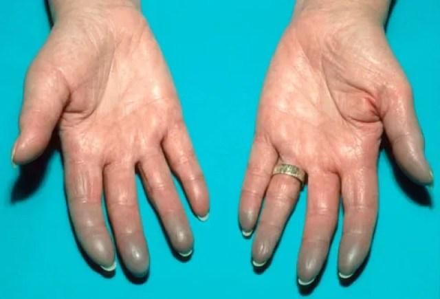 Lupus Rash On Womans Hands