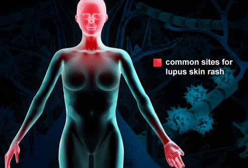 Illustration of Lupus Rash Sites