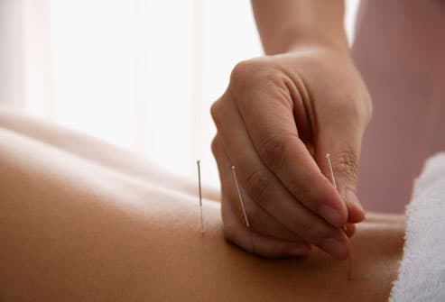MS Patient Getting Acupuncture