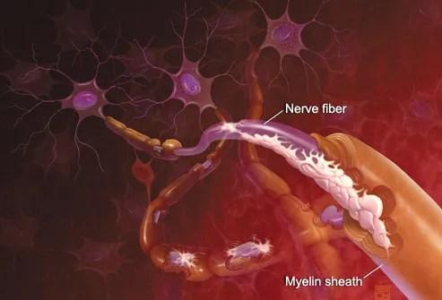 Illustration Of MS Attacking Brain