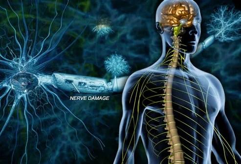 Resultado de imagem para nerve damage