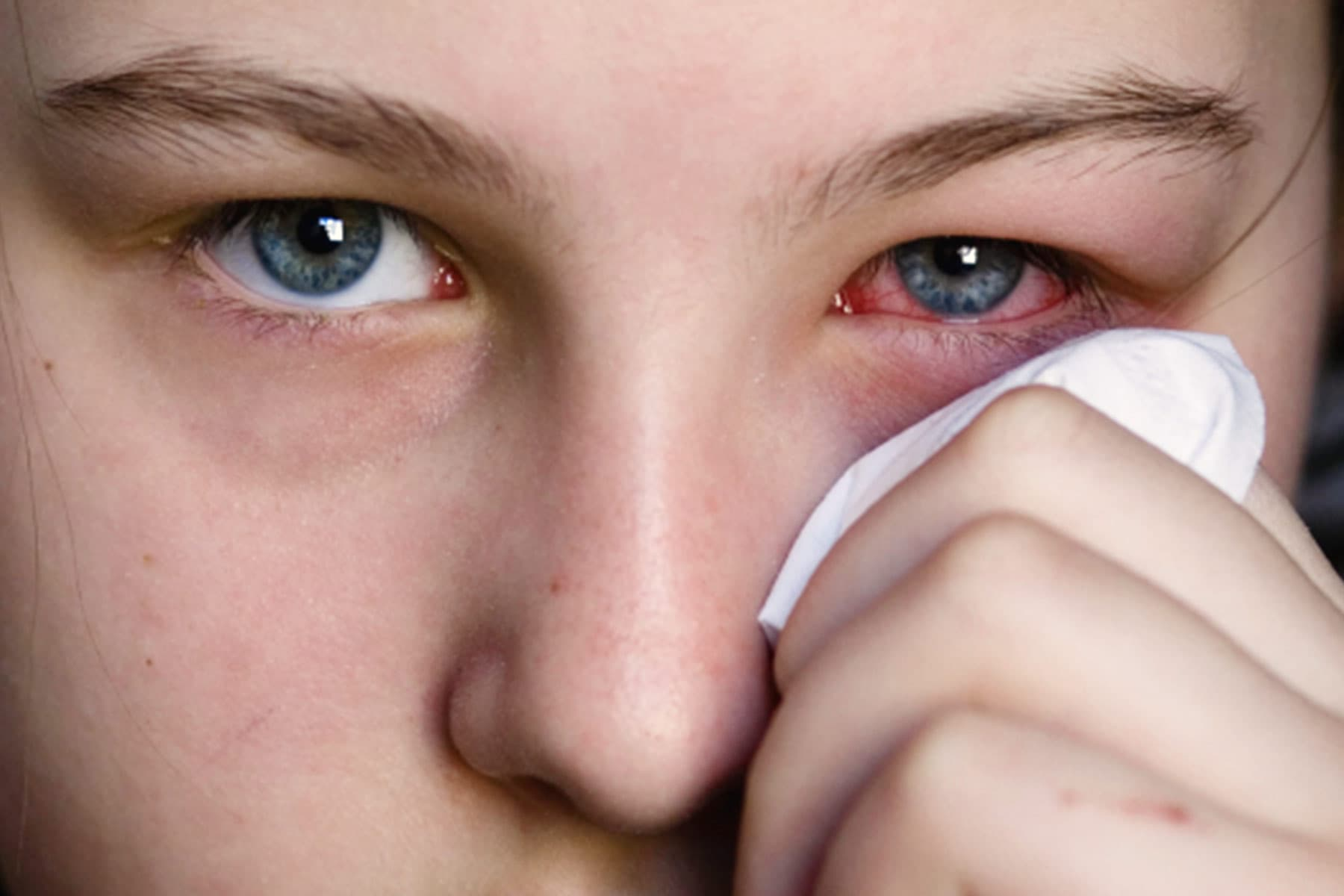 Pinkeye (Conjunctivitis) Pictures: What Pink Eye Looks