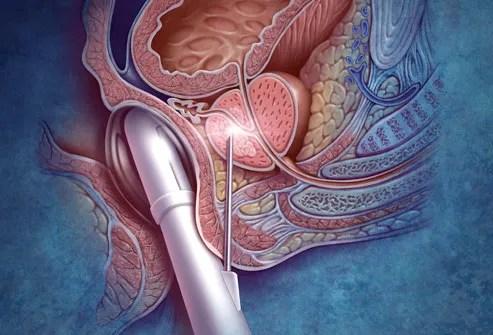 Illustration Of Prostate Biopsy