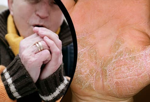 10 Psoriasis Triggers and How to Handle Flare-ups in Pictures