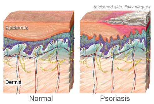 illustration of psoriasis