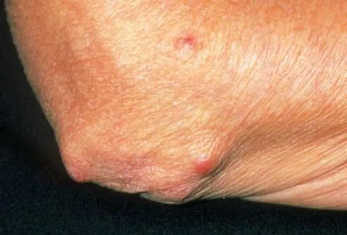 Rheumatoid arthritis nodules on elbow