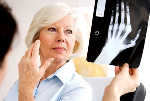 Woman with rheumatoid arthritis in her hand