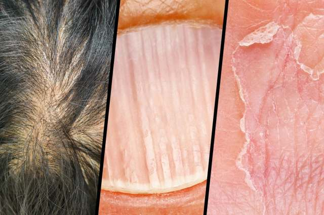 hair skin and nails triptych