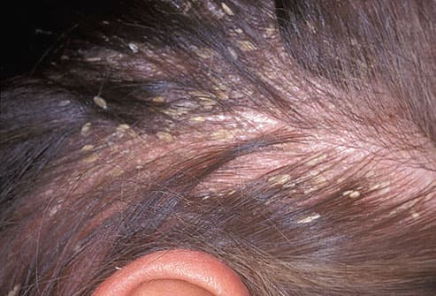 Pictures of What Your Hair and Scalp Say About Your Health ...