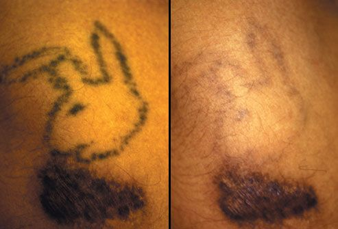 Dermabrasion and Laser Tattoo Removal