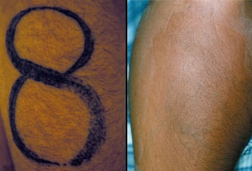 Tattoo on forearm before and after therapy.