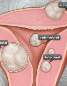 Types of fibroids intramural also uterine fibroid pictures anatomy diagrams rh webmd