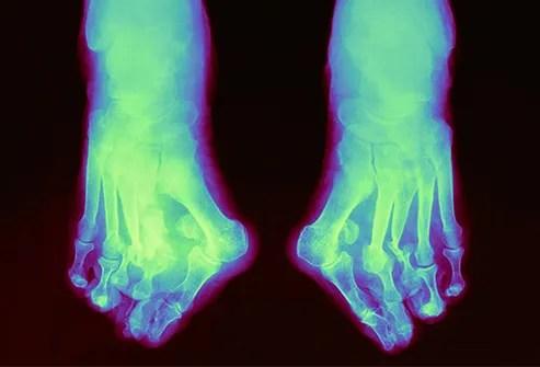charcot foot x ray