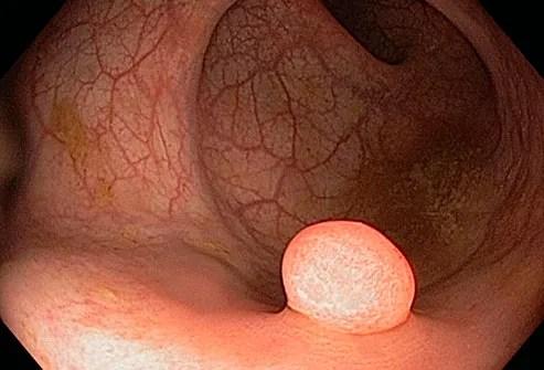 polyp in colon