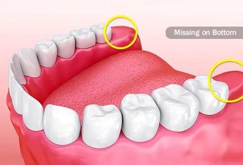 Tanda Harus Segera Mencabut Gigi Geraham Bungsu- Global Estetik Dental Care
