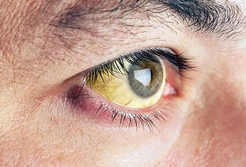 jaundiced eye close up