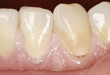 """Penyebab Gusi Menjadi Putih """"Pucat""""- Global Estetik Dental Care"""