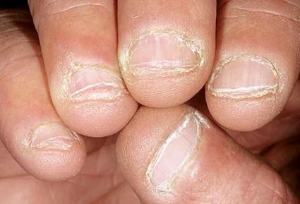 dermnet photo of bitten nails