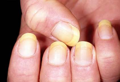 dermnet photo of yellow nails