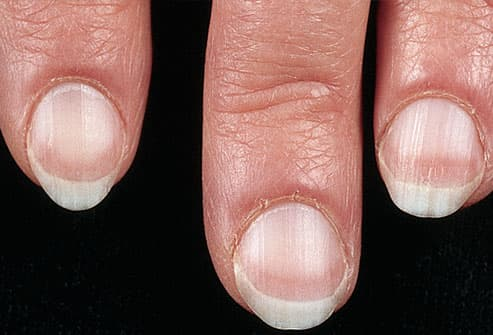 Pale Fingernail Beds On Woman S Hand