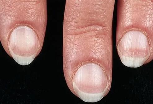 Pale fingernail beds on woman's hand