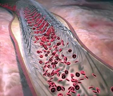 Coronary Angioplasty and Stent Procedure - Watch WebMD Video
