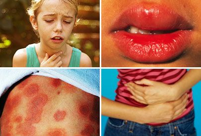 Signs And Symptoms Of An Anaphylactic Allergic Reaction