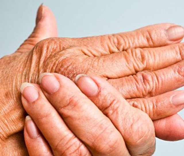 How Many Different Patterns Of Joint Problems Are There For People With Psoriatic Arthritis