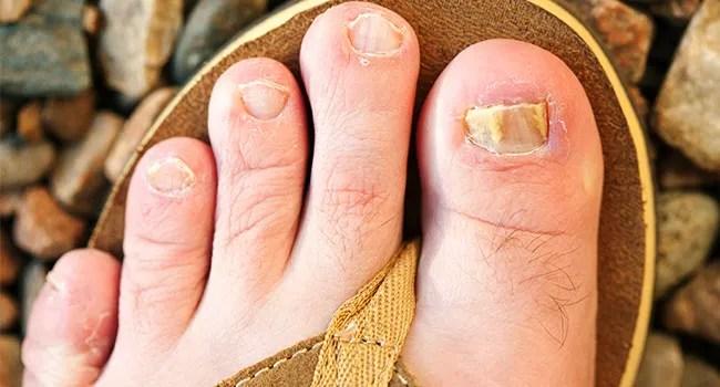 quiz myths and facts toenail