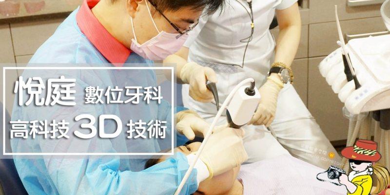 台北牙醫推薦悅庭牙醫高科技3D技術;全瓷冠/瓷牙貼片/導引式植牙/微笑曲線
