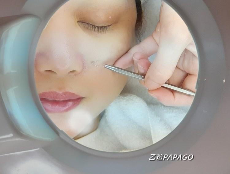 【板橋清除粉刺推薦】Nini's Studio美肌館〜使用高規格機器搭配手工清粉刺 完整的「軟化-細膩清理-保養舒緩」流程,幫您徹底清除全臉粉刺