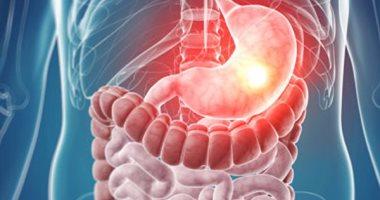 أعراض قرحة المعدة تفقد الوزن
